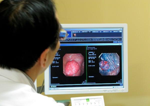 「ガン手術は受けるべき?受けないべき?」医師78人に聞いた
