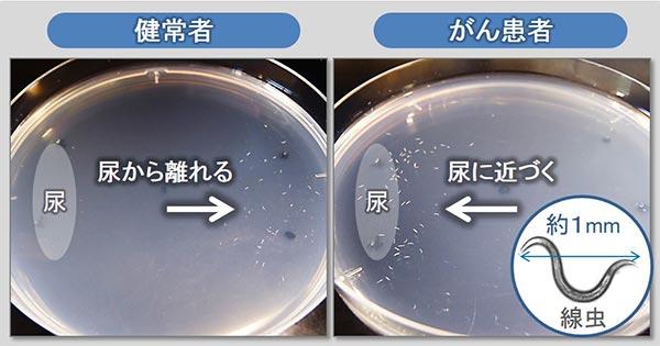 検査費用は数千円「尿1滴で早期ガンを発見」実用化へ
