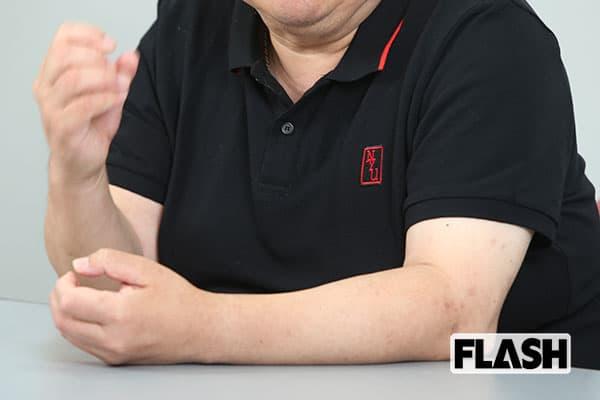 35歳で糖尿病になった男「治療費は毎月2万円」の痛恨