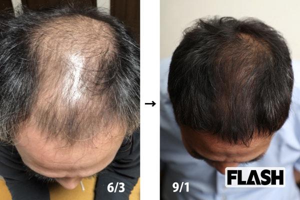 5カ月で髪がフサフサに! 「薬で治す」遠隔ハゲ治療