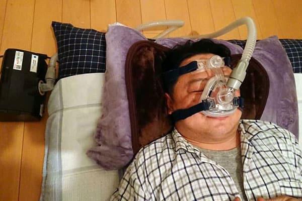 大事故につながる「いびき」治療費は1カ月5000円程度