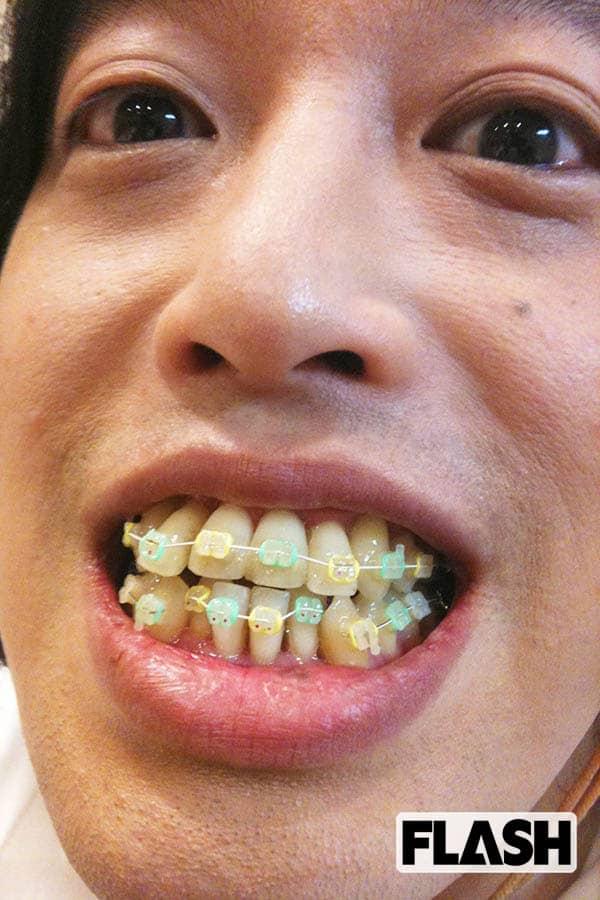 つい いちろう 歯並び や