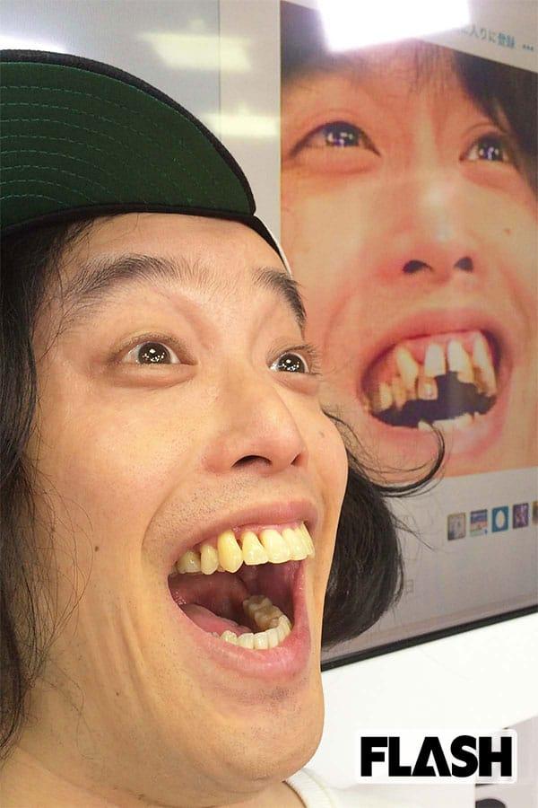 やついいちろうが語る「歯科矯正」中高年女性にウケまくり