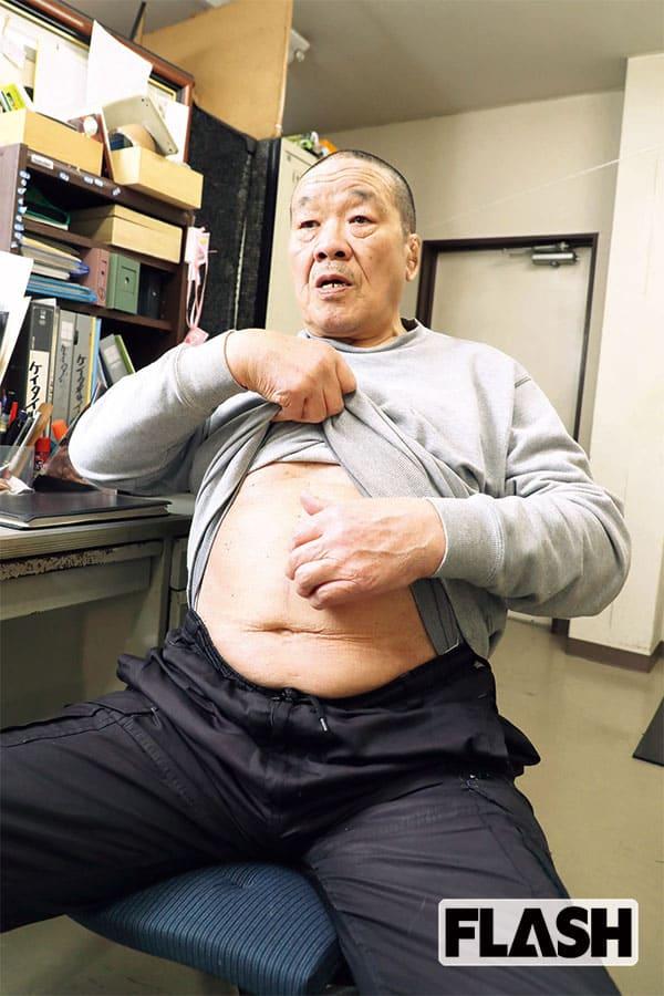 藤原喜明、58歳で罹った「胃ガン」医療費は3割負担で約70万円