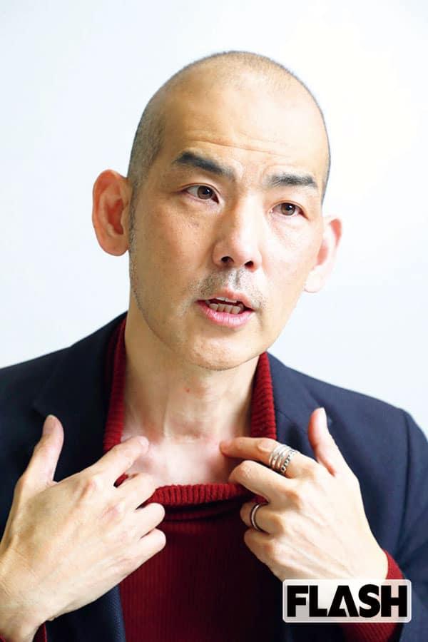 木山裕策、36歳で罹った「甲状腺がん」医療費は30万+毎月1万円