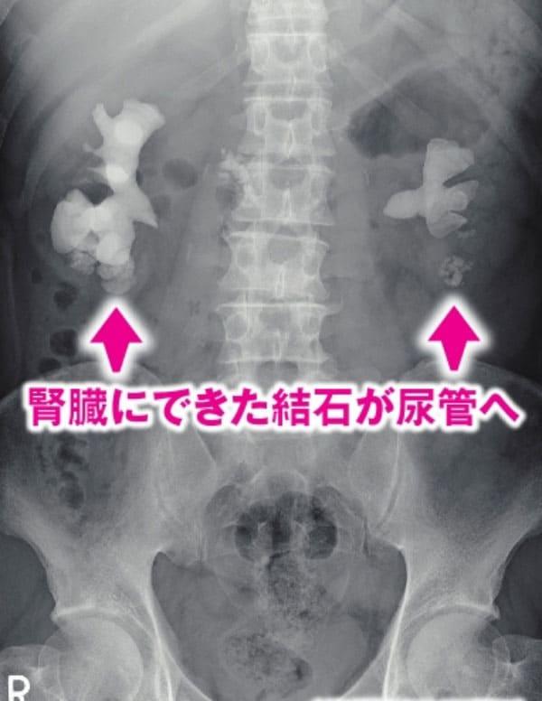 右側の腎臓(写真では左)に長径80mm、左側(同右)に長径40mmの、かなり大きく成長した結石が認められる