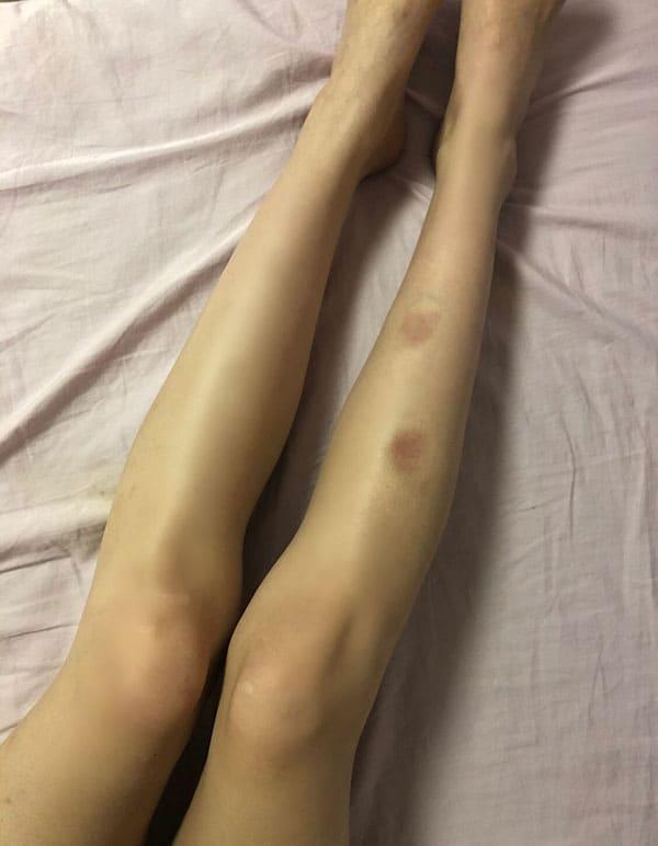 美女タレントのH美さんの体に絶えず刻まれた、生々しいあざ。道渕は、事あるごとに暴力を振るったという(知人提供写真)